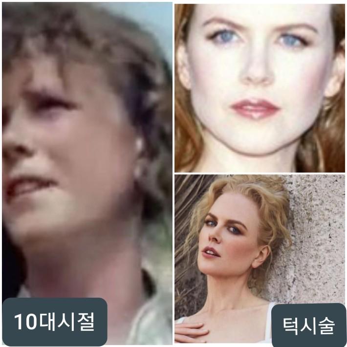 니콜 키드먼 성형전후